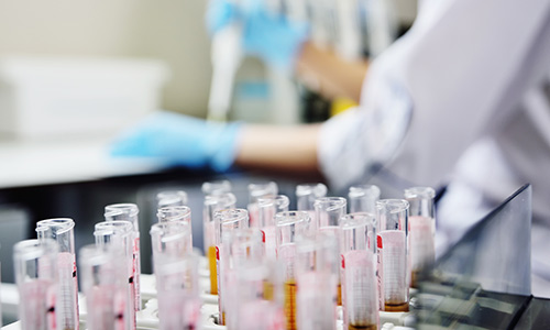 Genetic testing - test tubes lined up in laboratory with technician in the background