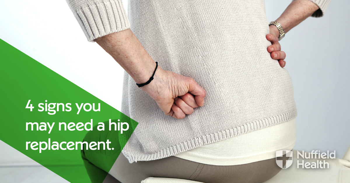 4 signs you need a hip replacement | Nuffield Health
