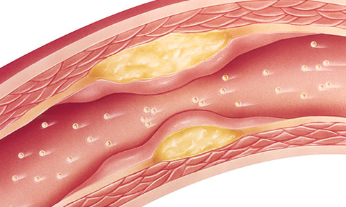 Plaque build-up in blood vessel