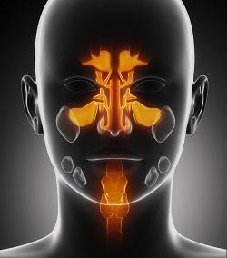 Sinusitis (rhinosinusitis)