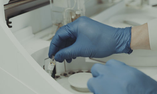 Pathology_blood test_c311_500x300
