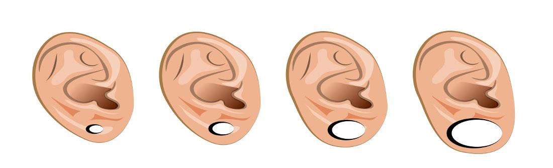 Ear stretching cartoon