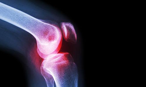 Knee osteoarthritis x-ray s-promo