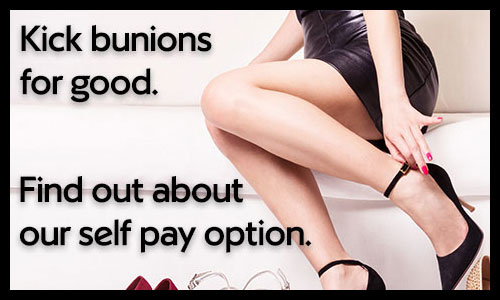 Self pay for bunions