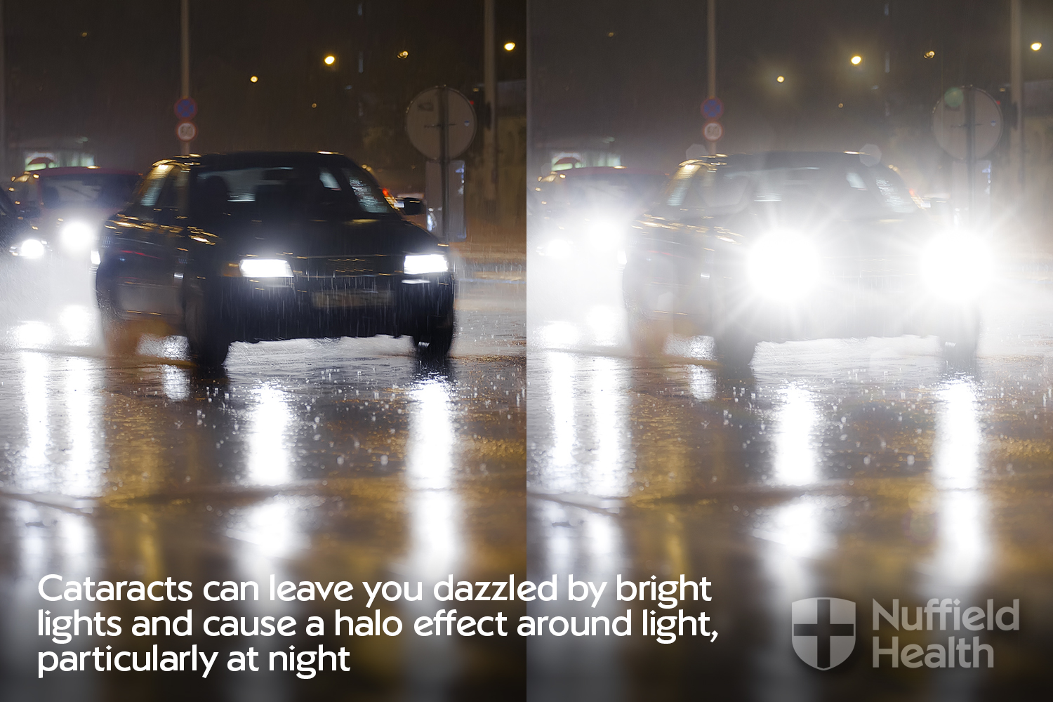Cataract symptom of dazzled eye sight from car lights