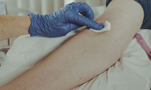 Blood test_cotton bud_500x300